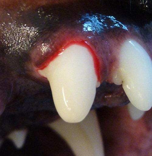 Efter-tandfyldning